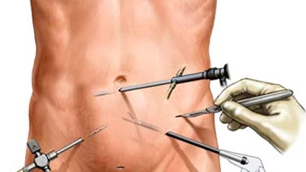 Cirugía urología laparoscópica en malaga